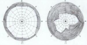 תוצאות בדיקת ראייה בסיום סדרת הטיפולים