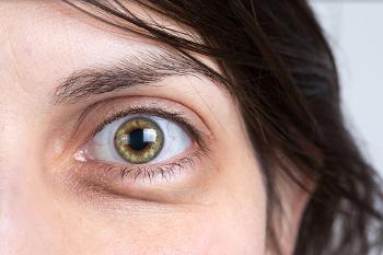 עיניים נפוחות