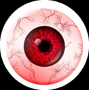עין אדומה, דלקת הלחמית