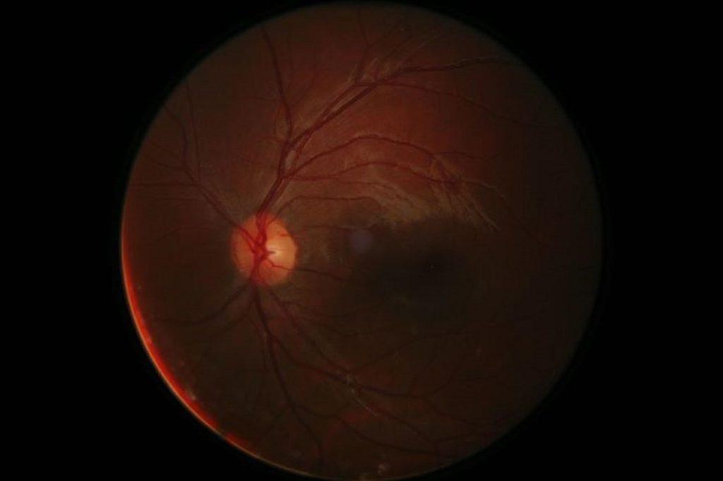 עצב הראייה