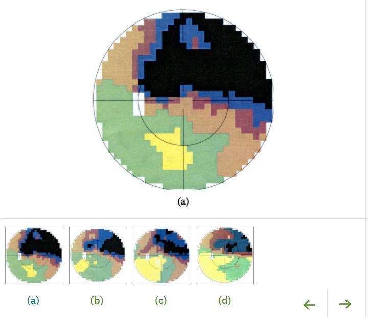 אוטם של עצב הראייה. טיפול לשיפור החדות